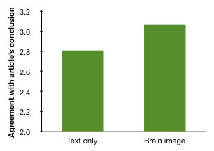 brain-image-vs-text