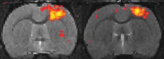 Mouse Brain fMRI