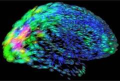 NIH Brain Map